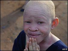 Albino_Afrique